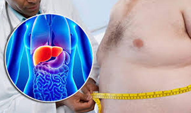 Fatty liver: are you at risk of cirrhosis ?